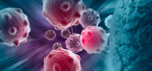 La enfermedad de Huntington como arma contra el cáncer