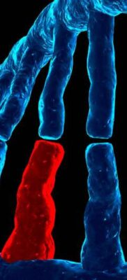 ¿Cómo puedo prepararme para  pruebas genéticas del síndrome de Sanfilippo?