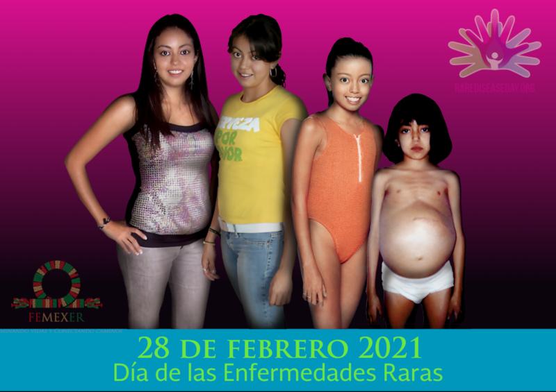 Día de las Enfermedades Raras 2021