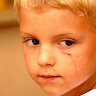 La verdad sobre la amenaza de COVID para los niños después de la recuperación
